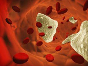 Associazione vincente di ezetimibe e simvastatina in pazienti con sindrome coronarica acuta: risultati dello studio IMPROVE-IT
