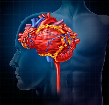 Controllo dei valori di pressione arteriosa e degli altri fattori di rischio cardiovascolare dopo ictus cerebrale: resta ancora molto da fare