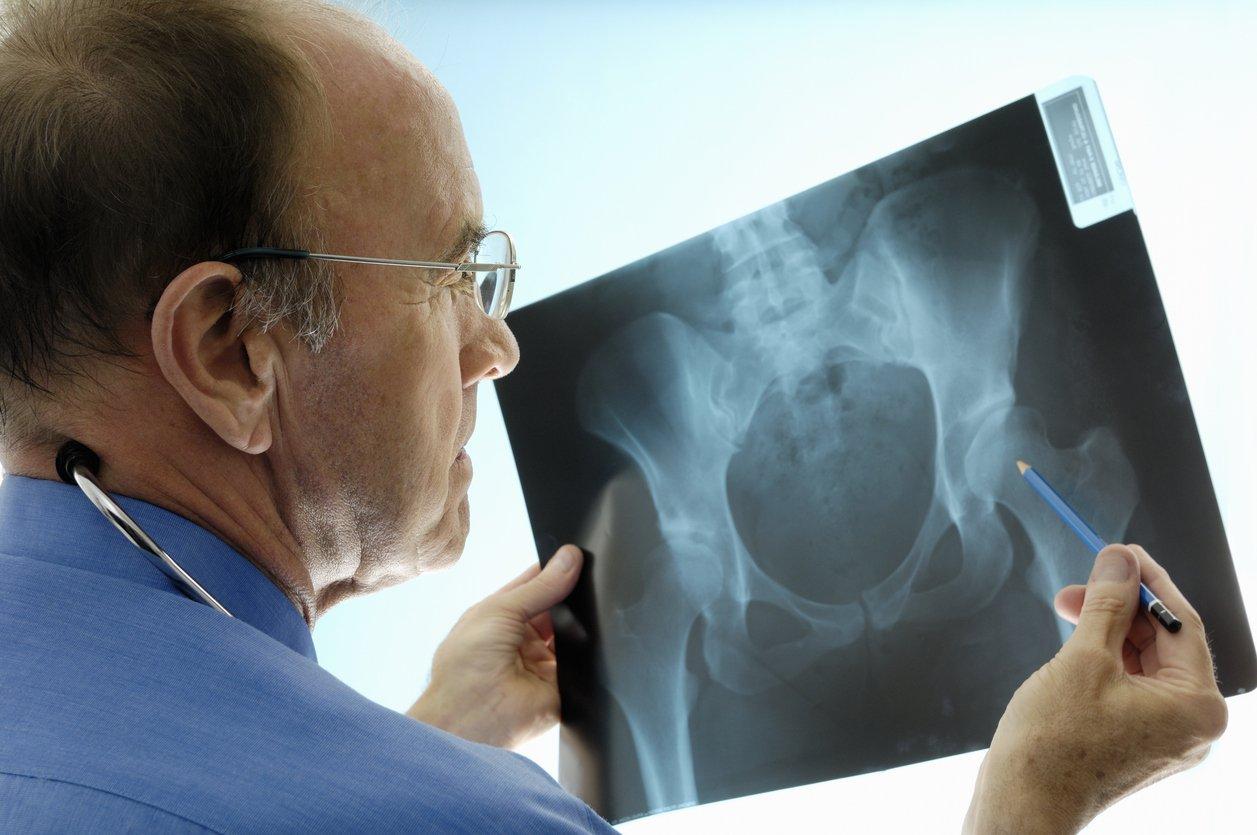 Ruolo dei farmaci antipertensivi sul rischio di fratture dell'anca